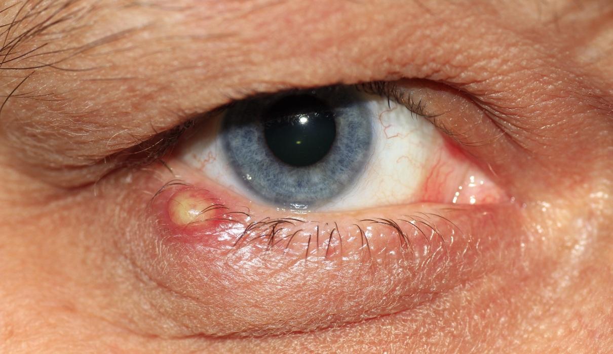 Euphrasia – Augentrost